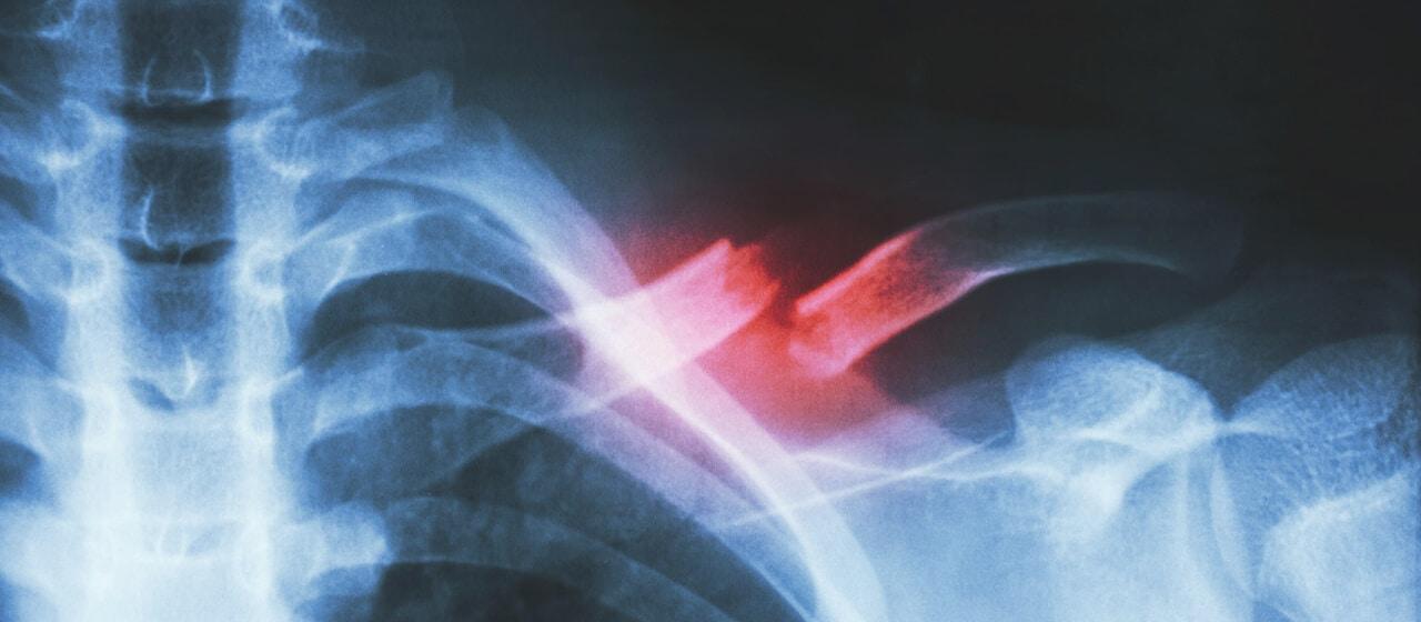 Andrew McMaster's broken collarbone