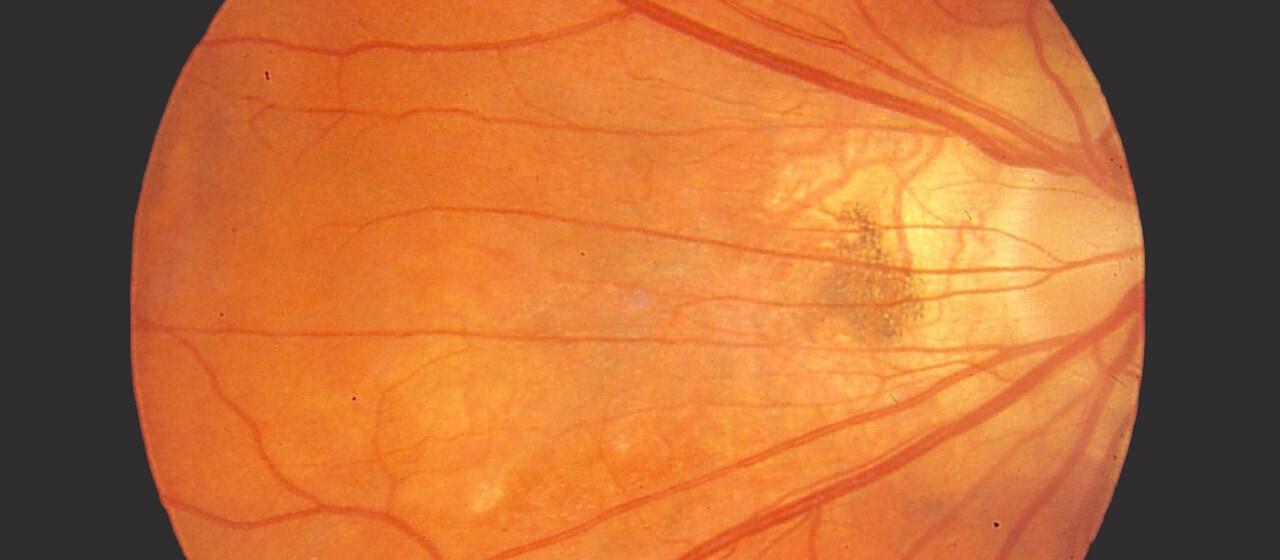 Bobbie Kolarik optic nerve impact