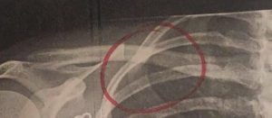 meghan hogan's broken collarbone