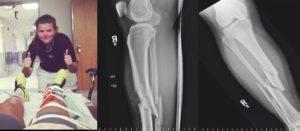 sam reeves broken leg in 5 places