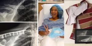 jade mcgrath's twice broken collarbone injury